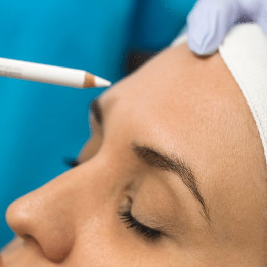 Anti-Wrinkle Injections - Girl Receiving Treatment