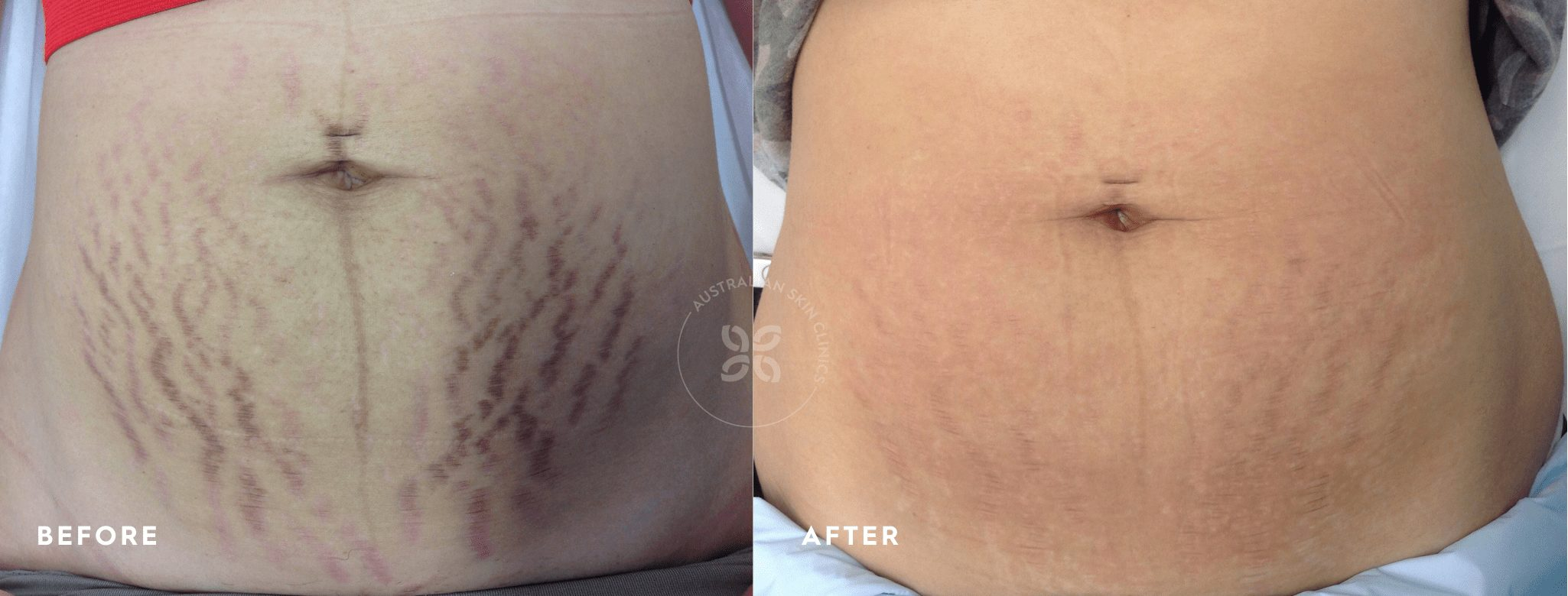 Stretch marks before and after fractional