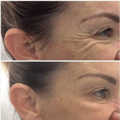 before and after results of anti wrinkle injections