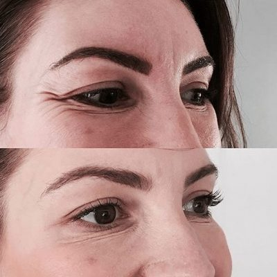Crows Feet Before and after image
