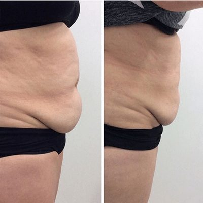 Cool Sculpting fat reduction