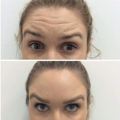 before and after Forehead lines images for cosmetic injections