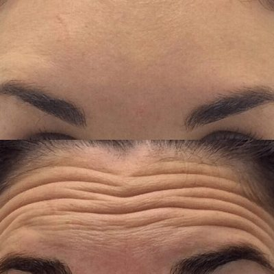 Forehead lines Before & After botox dysport