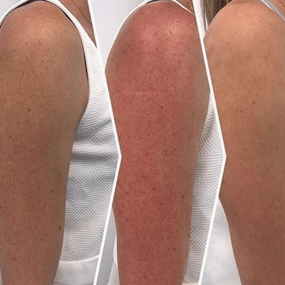 reduction of pigmentation on arms