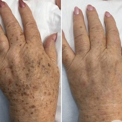pigmentation and freckle removal before and after picture of hands