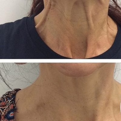 Neck bands - Before and after anti-wrinkle injections