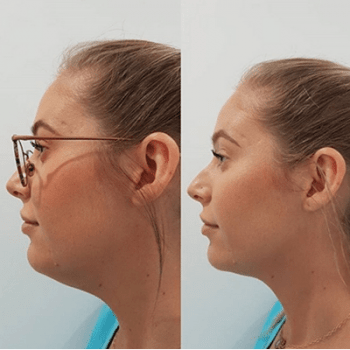 Chin Sculpting results before and after
