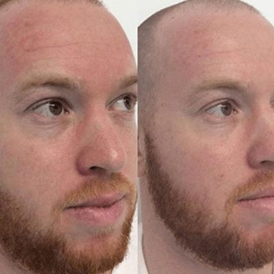 Laser for Redness before and after image on male