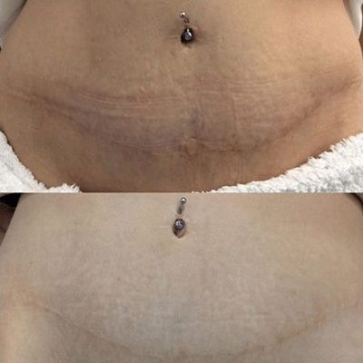 Frantional RF Skin tightening treatment before and after
