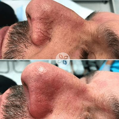 Laser for Veins before and after image showing real results
