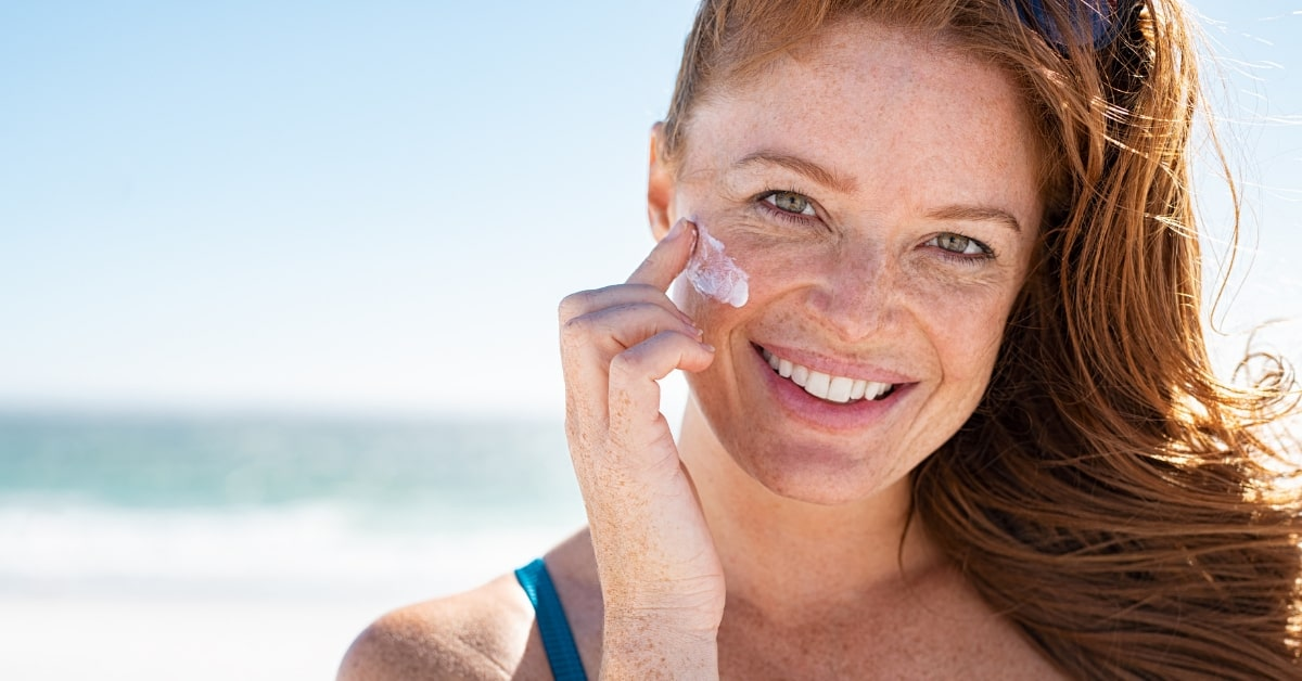 common skin concerns: freckles