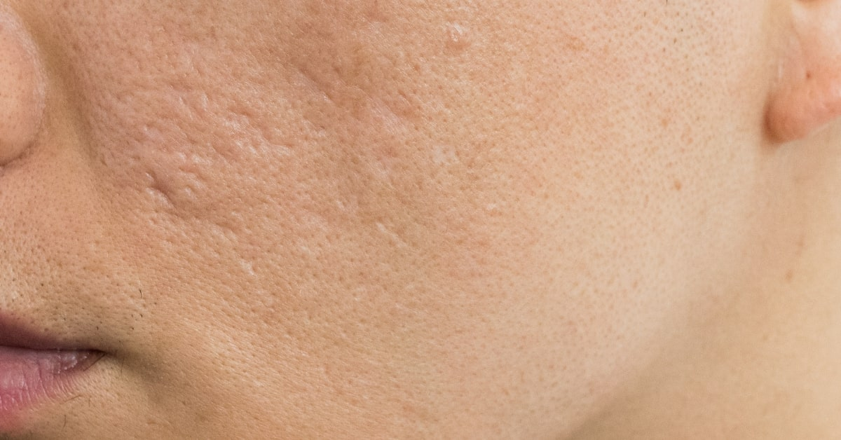 acne scarring male