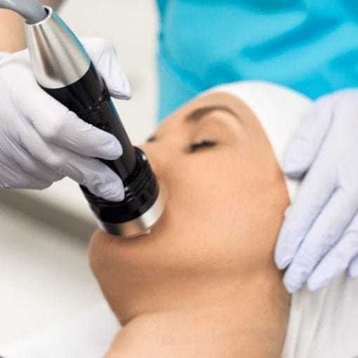 Fraction RF Skin Tightening