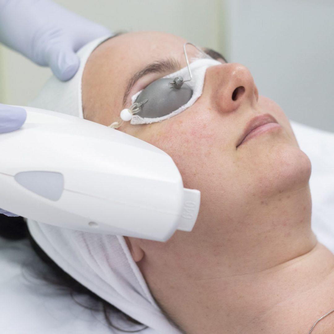 IPL Skin Rejuvenation Treatment on Face
