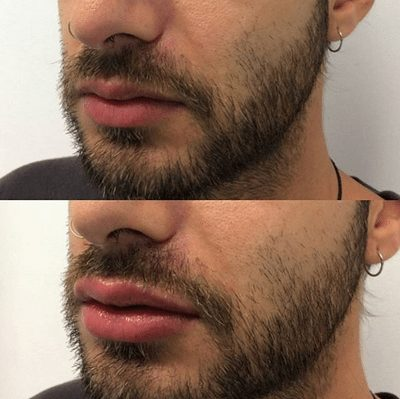 Lip Filler Before and After Results for Men