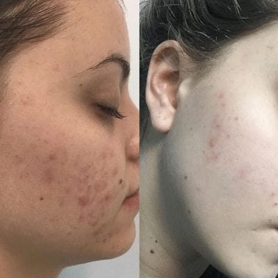 Medi Aesthetic Peel Before and After results
