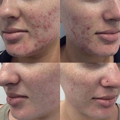 Medi Aesthetic Peel Before and After