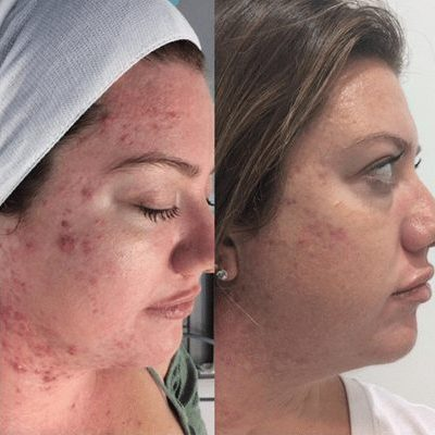 Microdermabrasion before and after results with Australian Skin Clinics