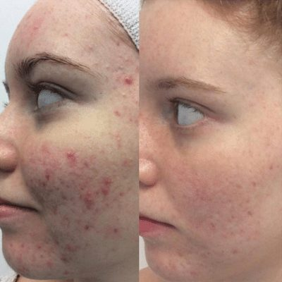 Before and after images for Microdermabrasion skin treatment