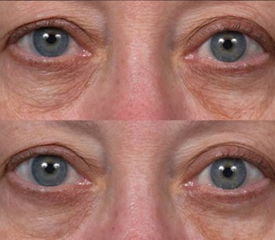 Thermage Skin Tightening Before and After Results