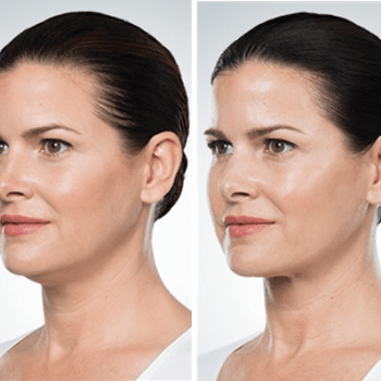 Chin Sculpting treatment before and after