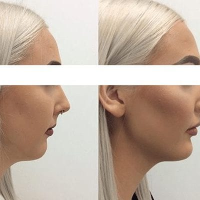 dermal filler before and after