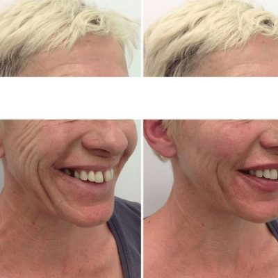 Dermal Filler Results - cheek filler