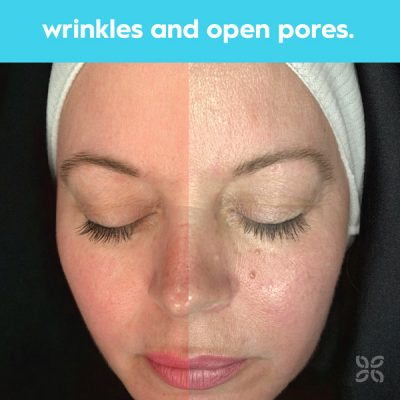 target wrinkles and open pores