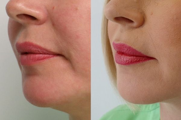 happy face cosmetic Injection before and after